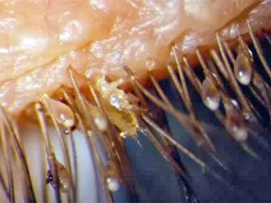 How To Get Rid Of Mites On Humans Types Of Mites On